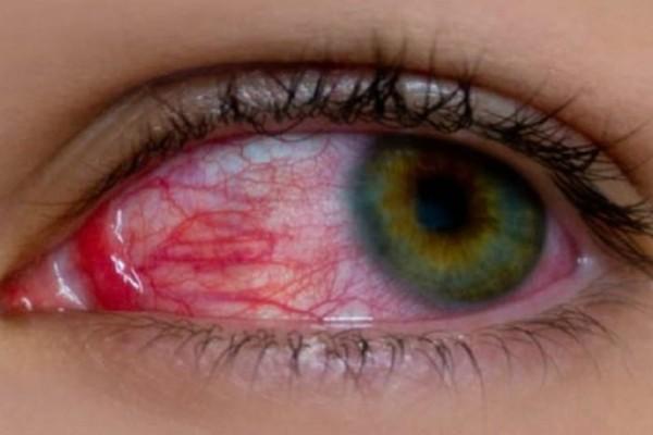 Ραγοειδίτιδα: Αίτια και συμπτώματα της πιο άγνωστης ασθένειας των ματιών