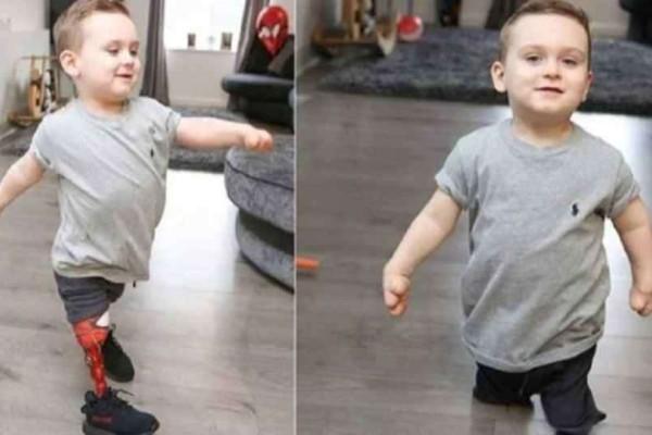 Απίστευτο: 3χρονο αγοράκι που έχασε τα πόδια του απο Μηνιγγίτιδα κάνει τα πρώτα του βήματα!