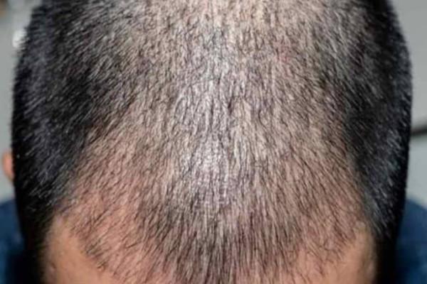 «Προσοχή στις επεμβάσεις Μεταμόσχευσης Μαλλιών από μη-ιατρούς»