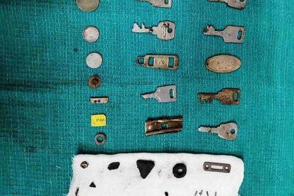 Σοκ: Γιατροί αφαίρεσαν 40 μεταλλικά αντικείμενα από το στομάχι ασθενούς!