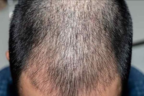 Ινδία: Επιχειρηματίας πέθανε μετά από επέμβαση εμφύτευσης μαλλιών!