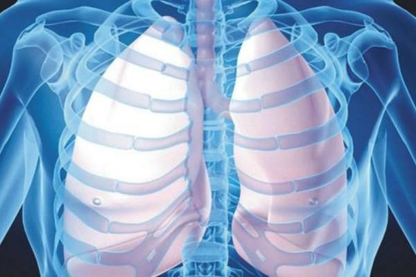 Σπουδαία ανακάλυψη για τη θεραπεία της πνευμονικής ίνωσης!