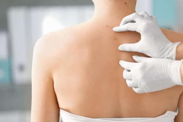 Δώσε βάση: Έτσι θα εξαφανιστούν τα σπυράκια στην πλάτη και στο στήθος!