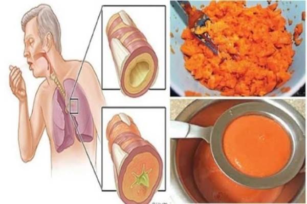 Αυτή είναι η αρχαία συνταγή που αφαιρεί το φλέμα από τους πνεύμονες και θεραπεύει τον βήχα!