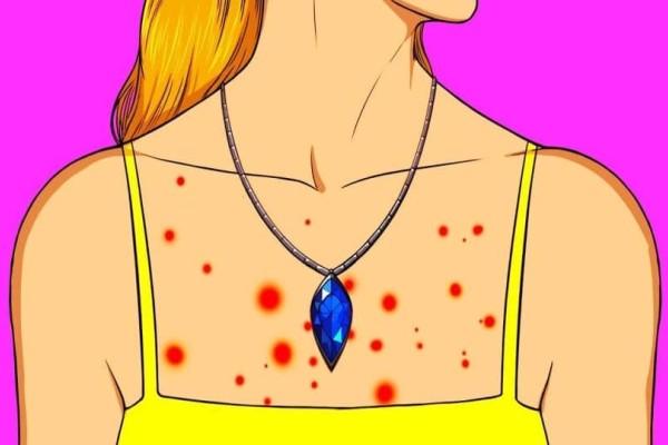 Αλλεργία στα κοσμήματα; Τι πρέπει να κάνετε σε αυτήν την περίπτωση;