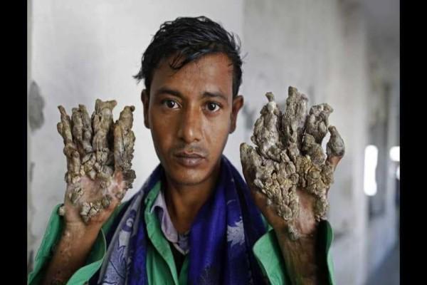 «Άνθρωπος – δέντρο»: Ζητάει από τους γιατρούς να τον ακρωτηριάσουν!
