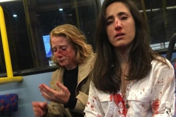 Λονδίνο: Τέσσερις συλλήψεις για την ομοφοβική επίθεση στην αεροσυνοδό και τη φίλη της!