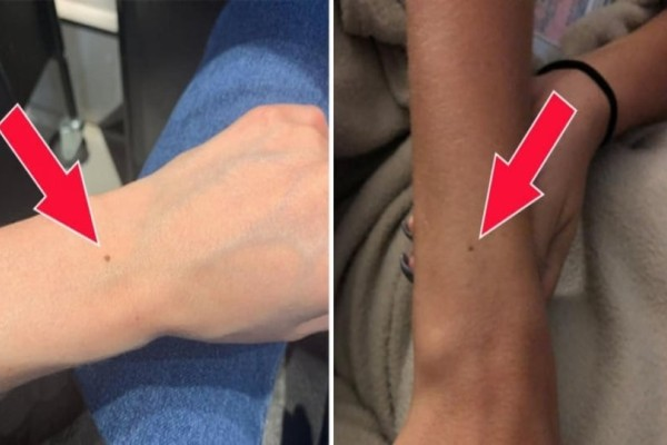 Όλες οι γυναίκες έχουν μια φακίδα στο ίδιο σημείο του χεριού τους - Δείτε γιατί!
