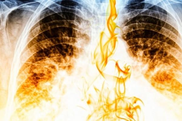 Σε πόσο καιρό θα καθαρίσουν οι πνεύμονες, αν κόψετε σήμερα το κάπνισμα!