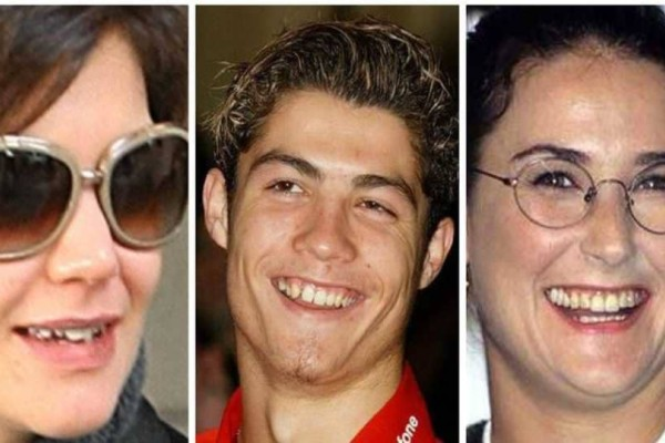 Αυτοί οι διάσημοι έχουν πραγματικά άσχημα δόντια!
