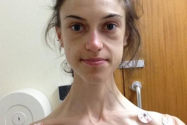 «Όταν μπήκα στην κλινική, ζύγιζα 31 κιλά. Σήμερα είμαι μια κούκλα χάρη στο Instagram»