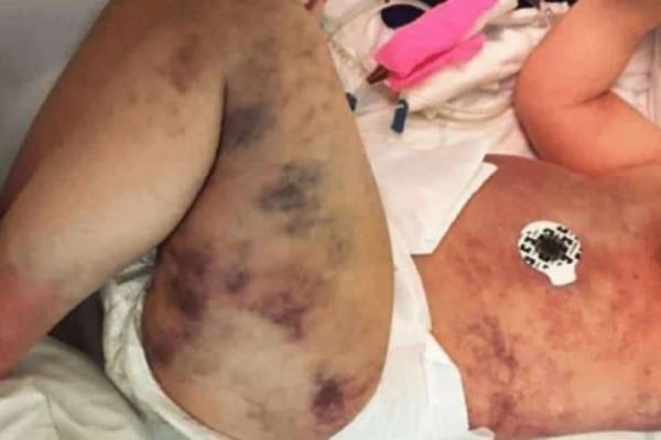 Όταν είδε το παιδί της σε αυτή την κατάσταση, της κόπηκαν τα πόδια!