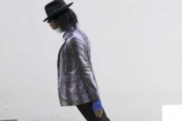 Ξόδεψε 30.000 δολάρια για να γίνει σαν τον Michael Jackson και σήμερα είναι κάπως… Έτσι!
