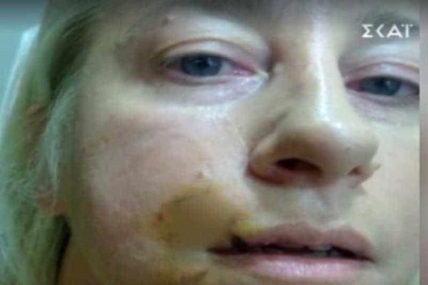 Ανατριχιάζει η αστρολόγος για την επίθεση  σκλύλου:''Ακουμπάω το χέρι μου στο πρόσωπό μου και βλέπω αίματα''