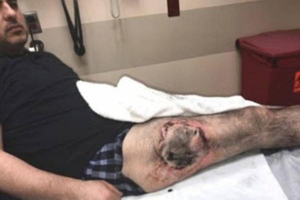 Εικόνες σοκ: Έσκασε η μπαταρία στην τσέπη του και του έκαψε το πόδι!