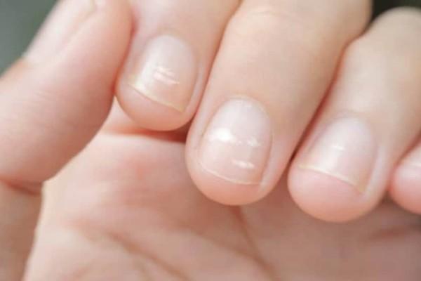 Έχετε λευκά σημάδια στα νύχια; Δείτε τι σημαίνουν!
