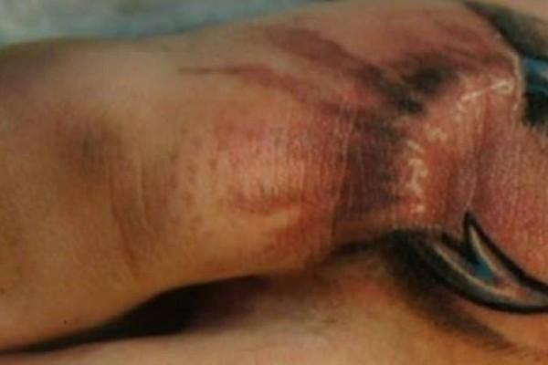 Όταν είδαν αυτό στο πόδι της κόρης τους, τους κόπηκαν τα πόδια! Δυστυχώς όμως, ήταν πλέον αργά…