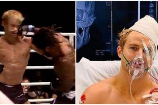 Του έριξε ένα χτύπημα στα 29 δευτερόλεπτα και θυμίζει Terminator, έχοντας 8 κατάγματα στο κεφάλι (vid)