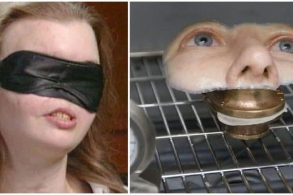 Το 1999 έχασε το μισό της πρόσωπό της. Δείτε πως είναι σήμερα μετά από ένα ιατρικό θαύμα!