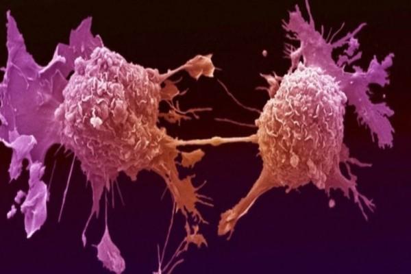 H διατροφή που «εξοντώνει» τα καρκινικά κύτταρα!