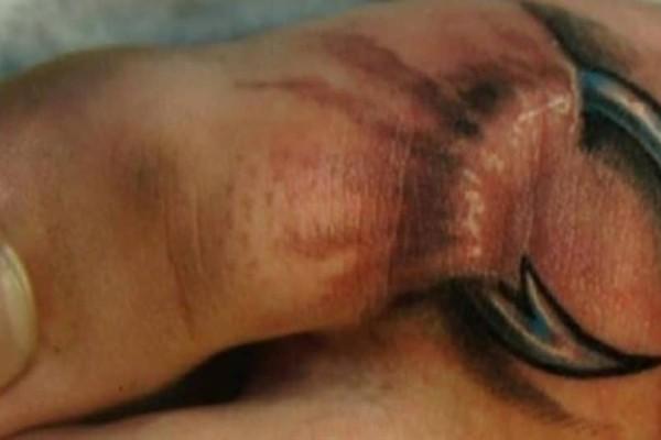 Όταν είδαν αυτό στο πόδι της κόρης τους, τους κόπηκαν τα πόδια! Δυστυχώς όμως ήταν αργά…