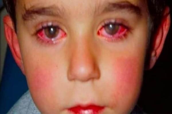 Προσοχή Κίνδυνος: 8χρονος έχασε την όρασή του από ένα παιχνίδι που όλοι έχουμε αγοράσει!