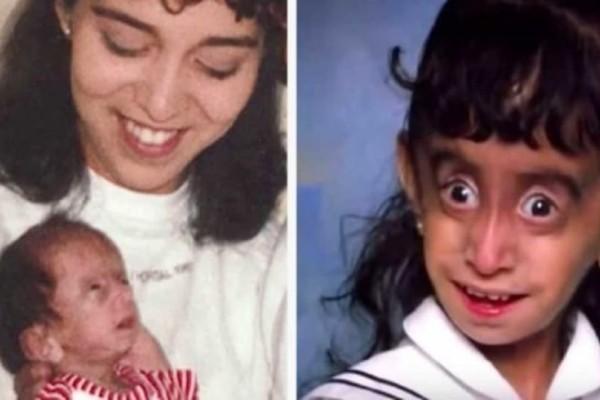 Στο σχολείο την φώναζαν «κακάσχημο τέρας» 25 χρόνια μετά, τους αποστομώνει με τη νέα της εμφάνιση! (Video)