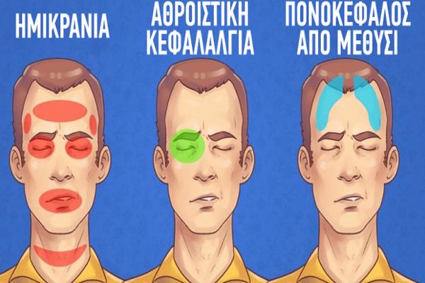 5 τύποι πονοκεφάλων και πώς να τους κάνετε να εξαφανιστούν!