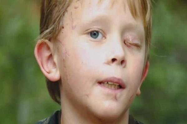 Αγόρι 8 ετών πάλεψε με λιοντάρι! Περιγράφει πως κατάφερε να γλιτώσει! (Video)