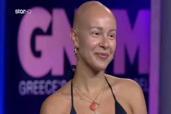 GNTM: Η αλωπεκία από τα 11 της Λυδίας και η συγκίνηση της Καγιά!