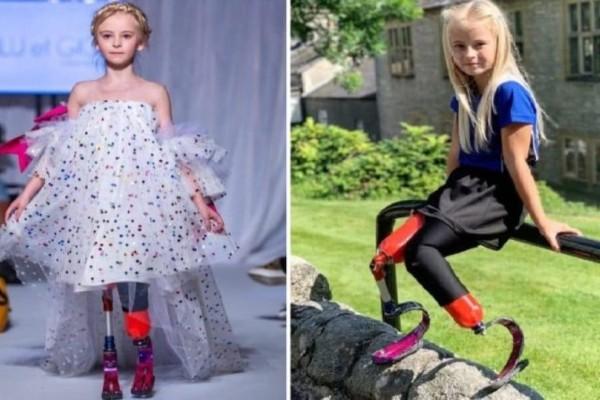 Παγκόσμιος θαυμασμός: 9χρονη με διπλό ακρωτηριασμό στην εβδομάδα μόδας για παιδιά! (Video)