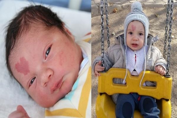 Μωράκι γεννήθηκε με ένα σημάδι σε σχήμα καρδιάς και όλος ο κόσμος το λατρεύει...