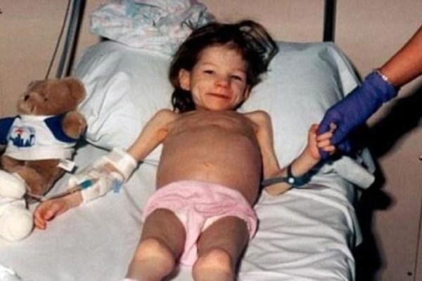 Θυμάστε το κοριτσάκι που οι γονείς της την είχαν κλειδωμένη για χρόνια σε μια ντουλάπα και την βίαζαν; Δείτε πως είναι σήμερα!