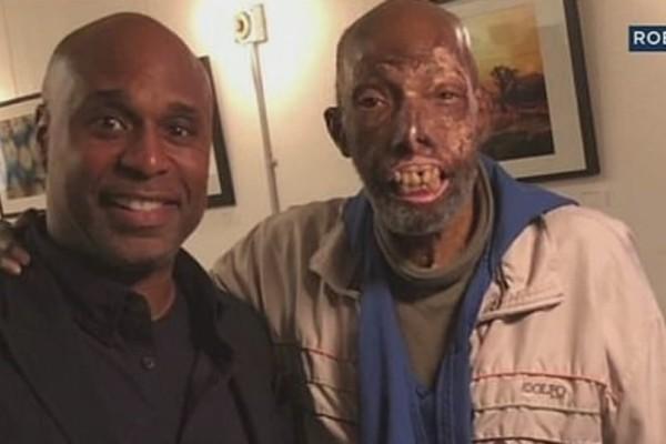 Απίστευτο: Ο πρώτος Αφρικανο-Αμερικανός που κάνει μεταμόσχευση προσώπου! (βίντεο)