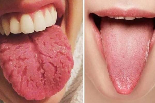 Πήγαινε τώρα σε έναν καθρέφτη και κοίτα τη γλώσσα σου! Αν είναι έτσι πρέπει να πας αμέσως σε γιατρό!