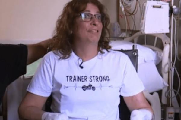 Την έγλειψε ο σκύλος της και οι γιατροί αναγκάστηκαν να της κόψουν τα χέρια και τα πόδια!