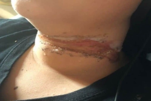 Τραυματισμός σοκ στην Κρήτη: 13χρονος δεν είδε τα σχοινιά της παρέλασης, πέρασε με το ποδήλατο και τού χάραξαν το λαιμό!