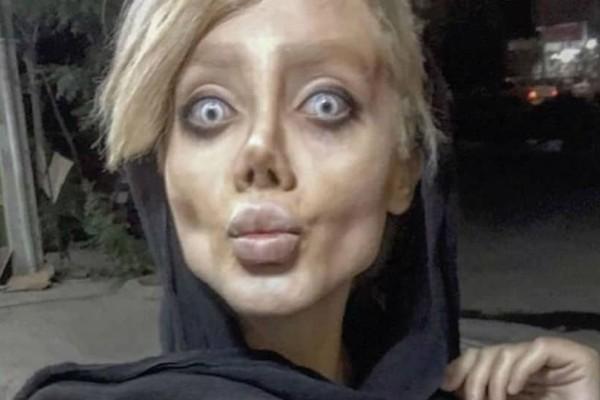Συνελήφθη η 22χρονη που ήθελε να μοιάσει στην Αντζελίνα Τζολί!