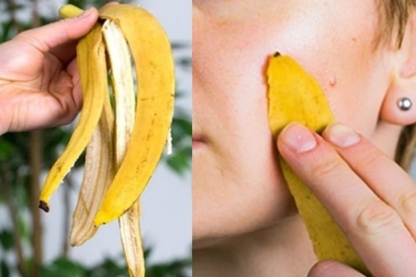 Βάλτε φλούδα μπανάνας στο πρόσωπο σας. Δεν φαντάζεστε τι θα συμβεί...