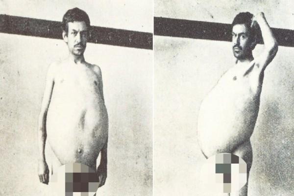 Απίστευτο: Αυτός ο άντρας πήγαινε τουαλέτα μια φορά το μήνα! Αυτό που έγινε μετά από χρόνια θα σας σοκάρει!