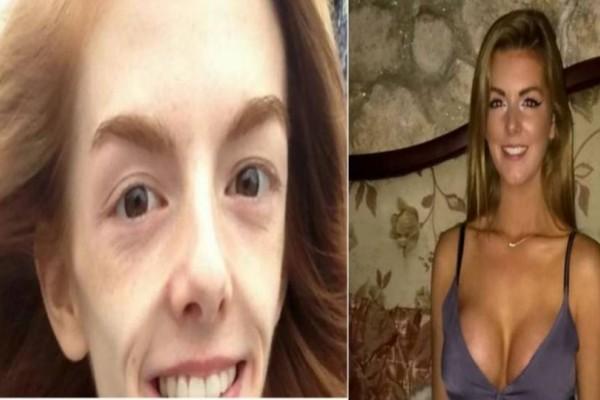 Δύναμη ψυχής: Αυτό το κορίτσι ζύγιζε 30 κιλά σώθηκε από τη σοκολάτα και τώρα είναι αγνώριστη!