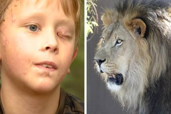 Αγόρι 8 ετών πάλεψε με λιοντάρι! Εκείνο πήρε το κεφάλι του παιδιού στο στόμα του! Λίγο μετά...