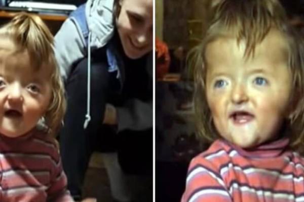 Νηπιαγωγείο αρνείται να εγγράψει 5χρονο κοριτσάκι γιατί έχει παραμορφωμένο πρόσωπο και μοιάζει με γιαγιά!