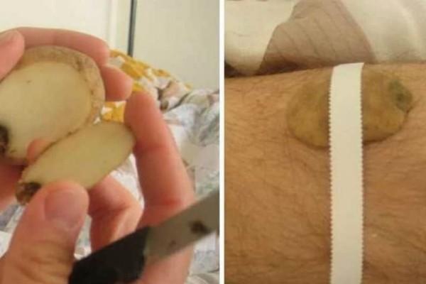 Κόβει μια πατάτα και τυλίγει με ταινία ένα μικρό κομμάτι της πάνω στο πόδι του. Ο λόγος; Απίστευτος!