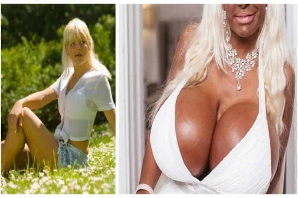 Ξόδεψε πάνω απο 50.000 ευρώ σε πλαστικές για να γίνει Eξωτική Μπάρμπι' αλλά έγινε...τέρας! Θα τρομάξετε όταν την δείτε!
