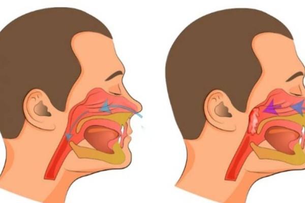 Βουλωμένη μύτη: 5+1 εύκολοι τρόποι για να την καθαρίσετε στο λεπτό και να αναπνεύσετε ελεύθερα!