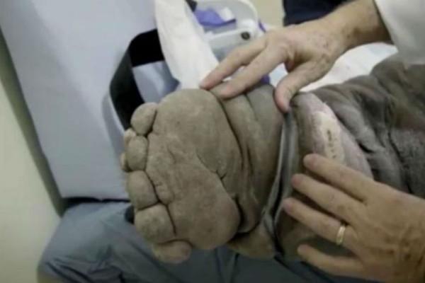 Απίστευτο: Αυτός ο άντρας μεταμορφώνεται σε ελέφαντα εξαιτίας μια σπάνιας ασθένειας!