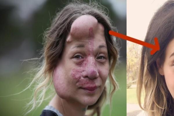Όσο μεγάλωνε το πρόσωπό της αλλοιωνόταν και οι γιατροί αποφάσισαν να της κόψουν την μύτη...Η εικόνα της σήμερα σοκάρει!