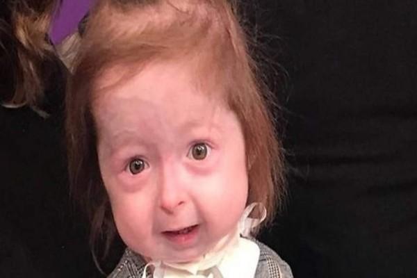 Άναυδη η επιστημονική κοινότητα: Η σπάνια ασθένεια που πάσχει 2χρονο κοριτσάκι!