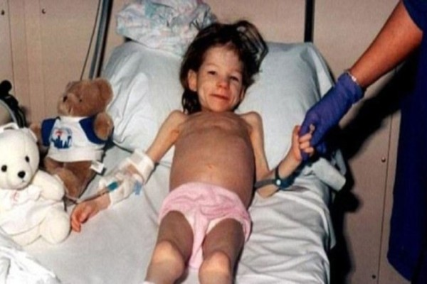 Θυμάστε το κοριτσάκι που οι γονείς της την είχαν κλειδωμένη για χρόνια σε μια ντουλάπα και την βίαζαν; Δείτε πως είναι σήμερα στα 22 της!